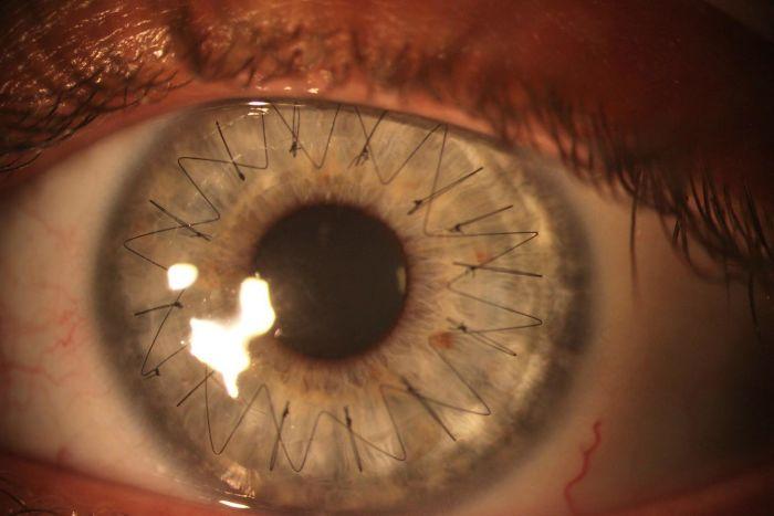 # 17 Oko po transplantácii rohovky